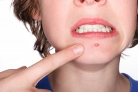 Treating Teenage Acne with Chinese Herbs