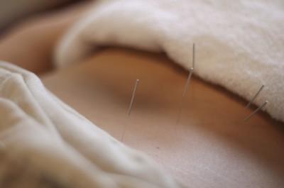 abdomen acupuncture
