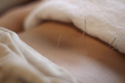 acupuncture abdomen