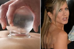 How to Wear your Cupping Marks