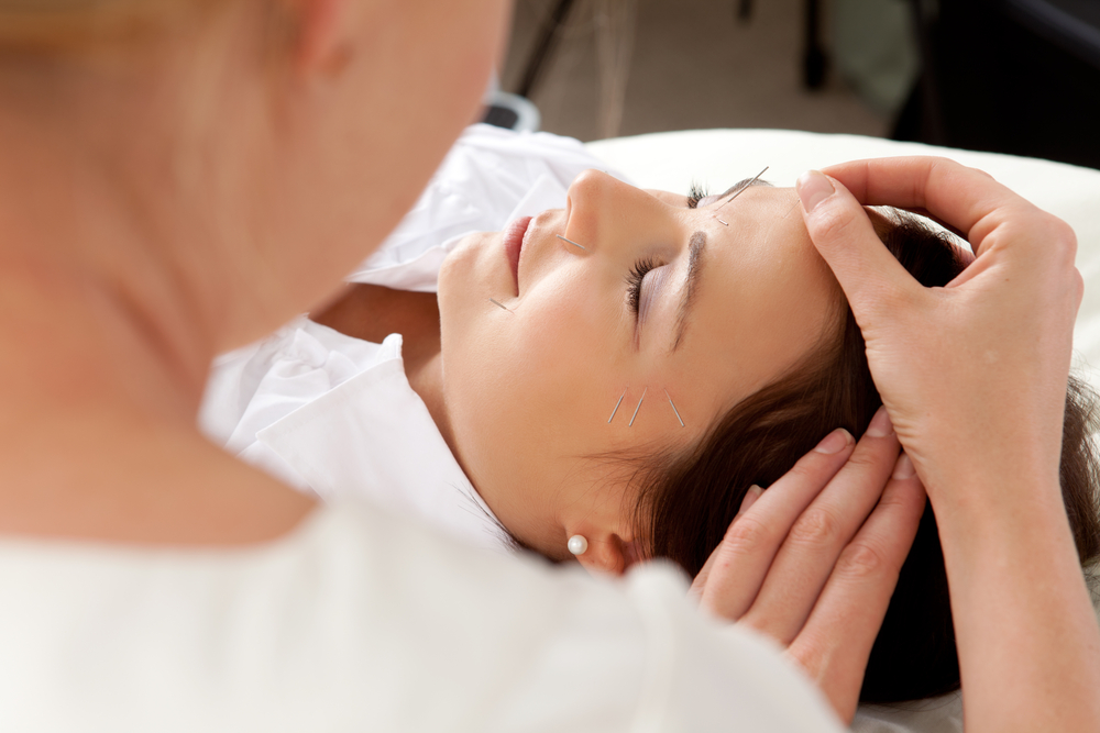 What do I Look for in an Acupuncturist?