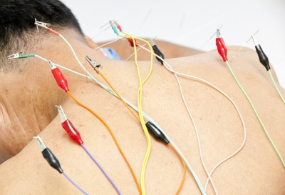 What is Electro Acupuncture | Acupuncture NYC | The YinOva Center