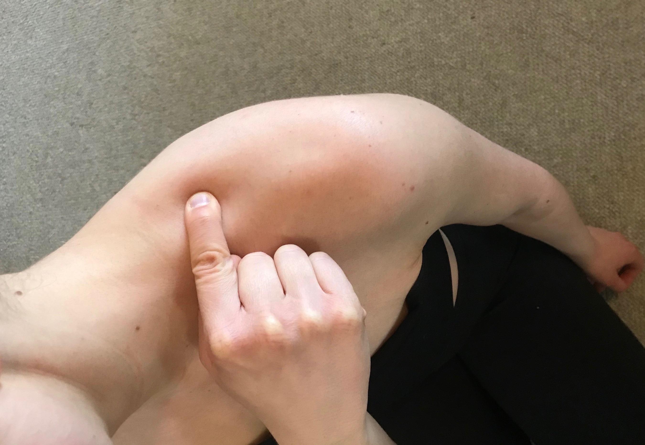 Pointing to Gallbladder 21